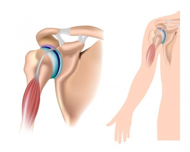 Biceps Labrum